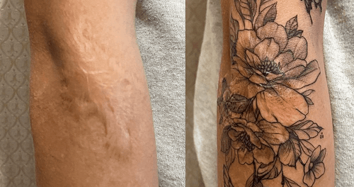 a-scar-covering-tattoo