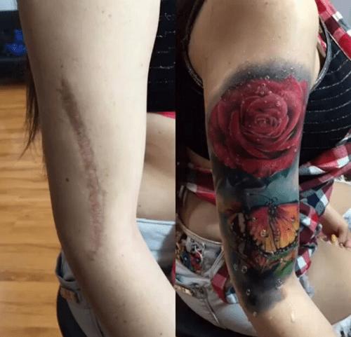 scar-tattoo-rose