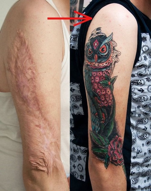 tattoo-over-scars