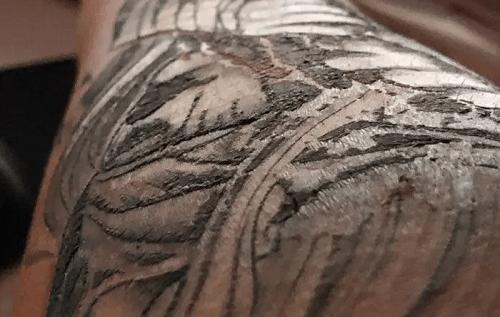 tattoo-peeling